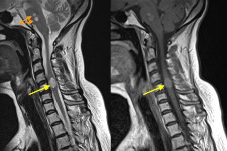 Spinal cord metastasis – MRI