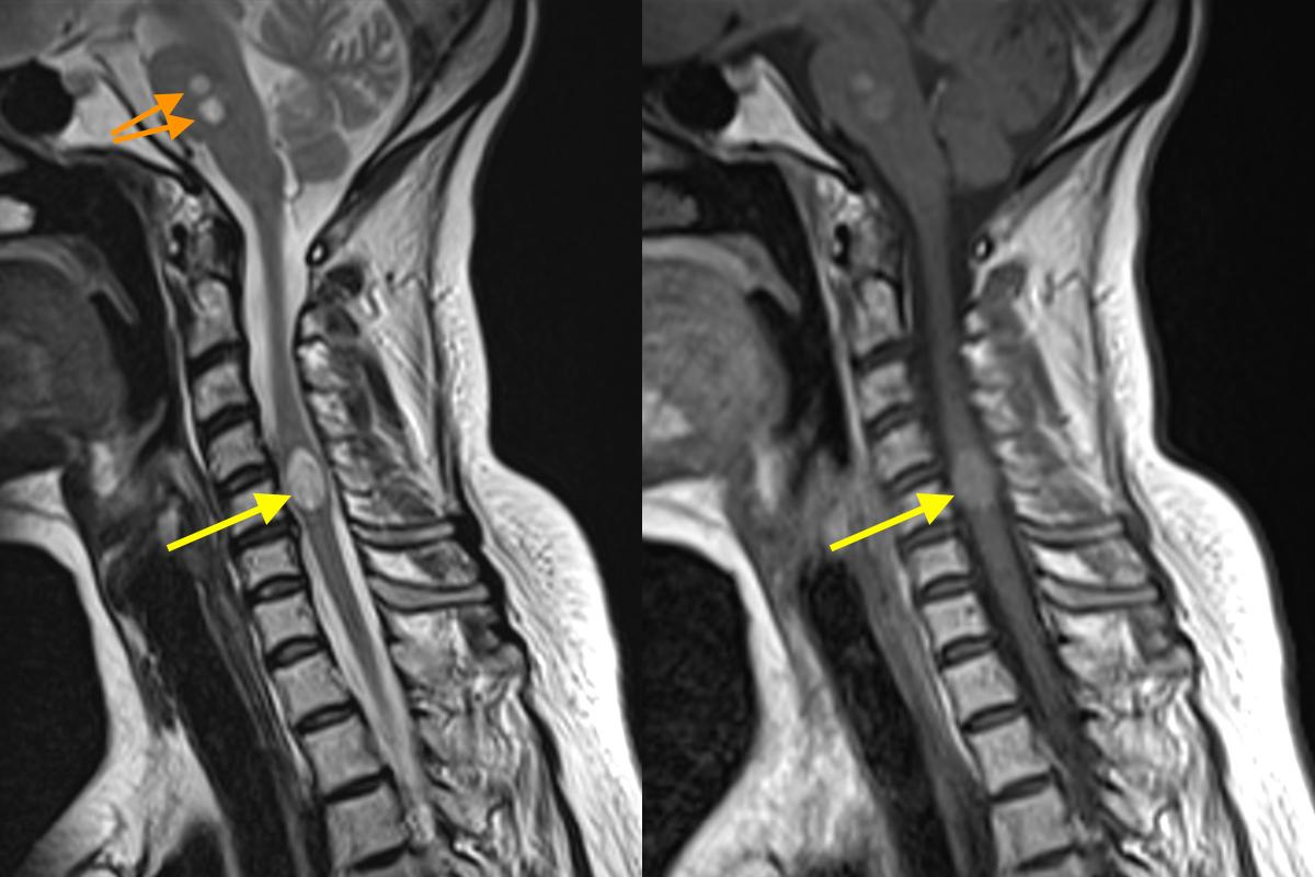 Spinal Cord Metastasis - Mri