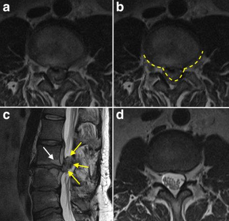 Cauda Equina Compression – MRI