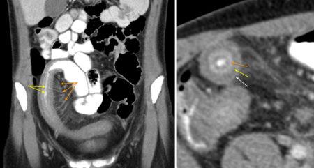 Comb sign and target sign – Crohn disease