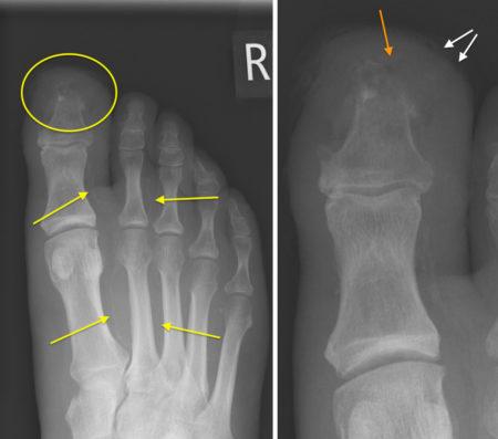 Diabetic foot – osteomyelitis