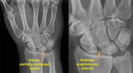 Kienbock's disease