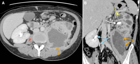 Xanthogranulomatous pyelonephritis (XGP)